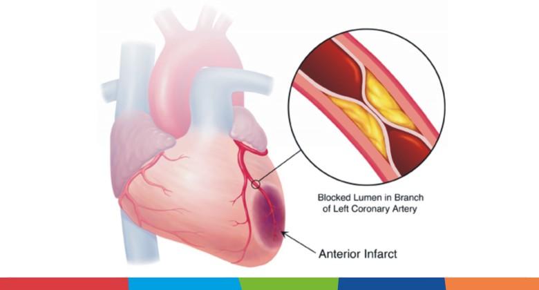 Prevenirea cardiopatiei